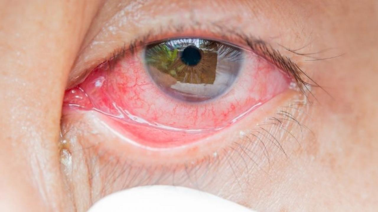 Many people lose their sight during Mucormycosis treatment
