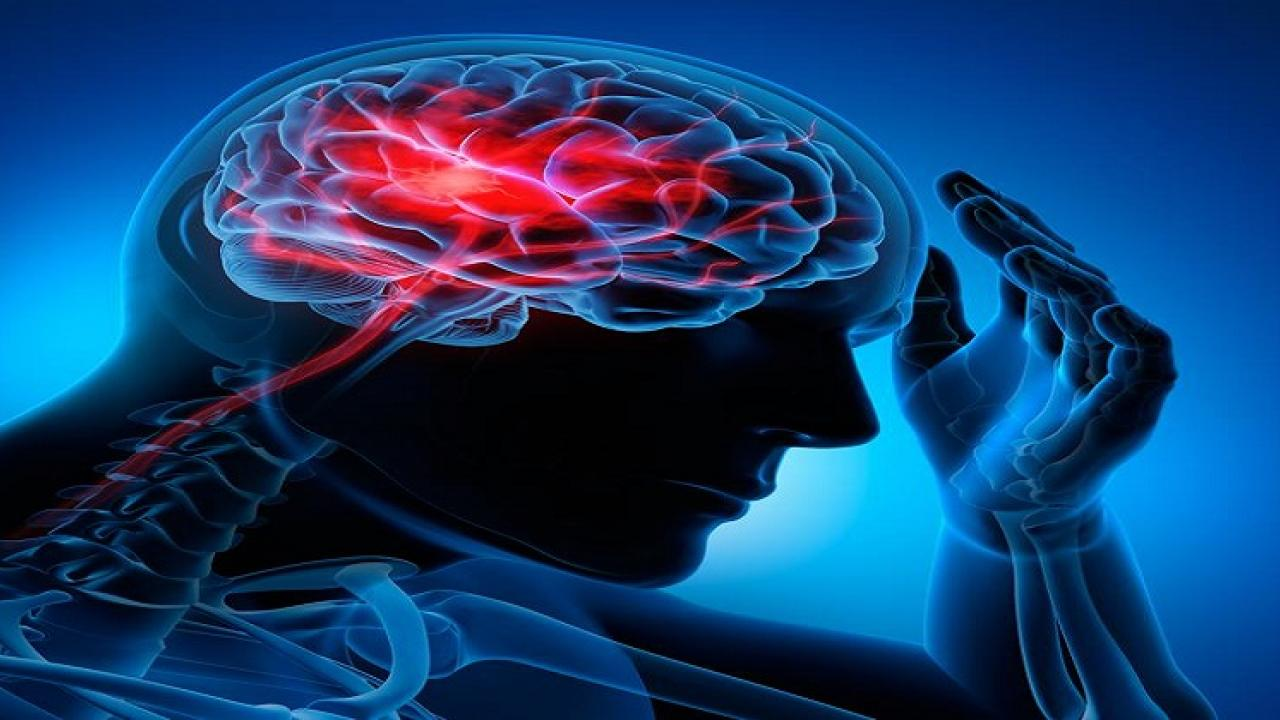 blog on brain strokes