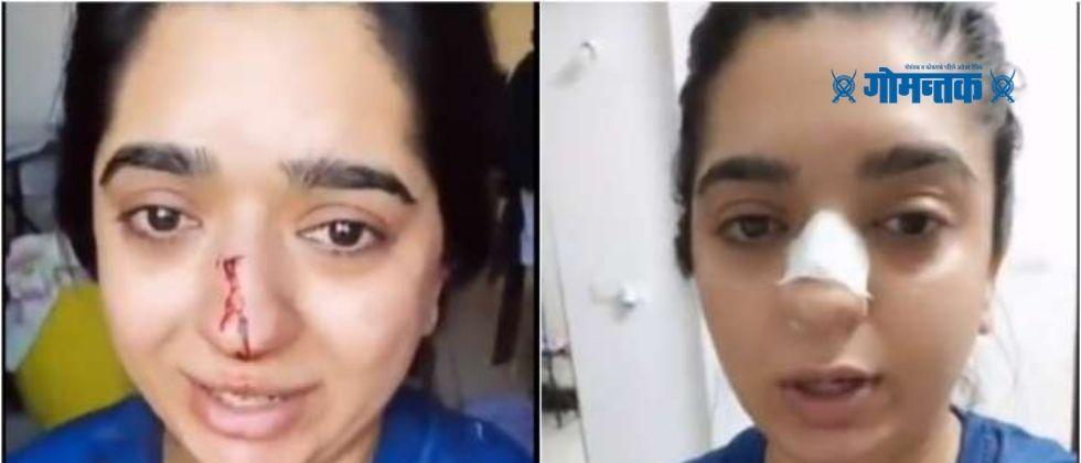 Zomato delivery boy blows womans nose over order cancellation