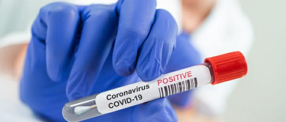 Now even a private doctor may suggest a Covid-19 test