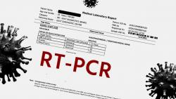 Explaining terms like CT Value and Target Genes that are usually mentioned in the RT-PCR reports (The Bridge Chronicle)
