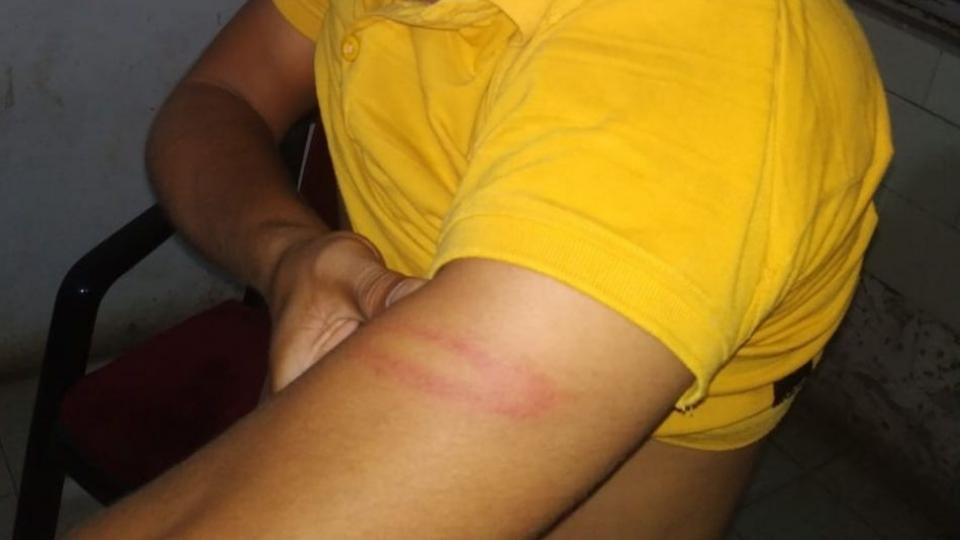 Doctor Beaten By Police in Beed