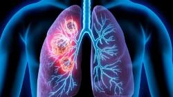 Study reveals lungs of dead COVID-19 patients showing distinctive features