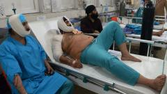 Afghan victims receive treatments at an hospital following a suicide attack in Jalalabad on Sunday. An explosion in a city in eastern Afghanistan where President Ashraf Ghani was visiting killed at least 12 people.