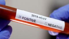 The World Health Organization (WHO) has reported a record increase in daily coronavirus cases across the world, despite many countries starting to ease lockdown measures.