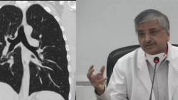 AIIMS director randeep guleria says ct scan and biomarkers are being misused